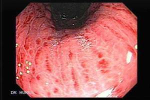 Gastritis-ATROFICA
